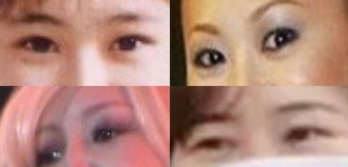 Keico 鼻 整形 失敗