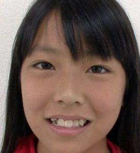 白間美瑠(みるるん)が整形か画像比較|注目は「目」「鼻」