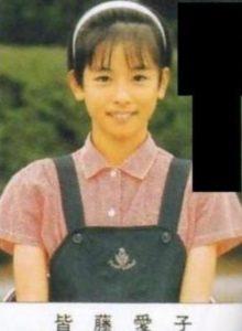 皆藤愛子が整形か画像比較|注目は「目」「鼻」「顎」