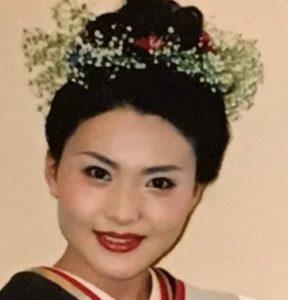 金子恵美が整形か画像比較|注目は「目」「鼻」「顎」