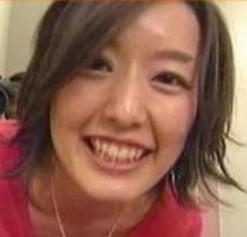 中村仁美が整形か画像比較|注目は「目」「鼻」「フェイスライン」
