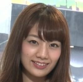 佐藤美希が整形か画像比較|注目は「目」「フェイスライン」