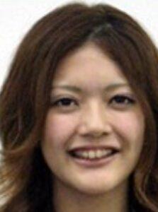 田中道子が整形か画像比較|注目は「目」「鼻」「顎」