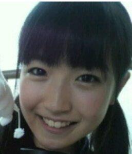 前島亜美が整形か画像比較|注目は「目」「鼻」「フェイスライン」