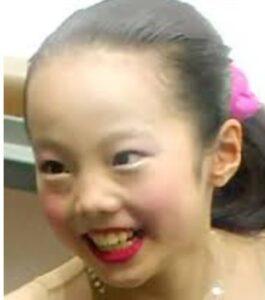 本田真凜が整形か画像比較|注目は「目」「鼻」「顎」